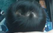 头上有三个旋在面相学上代表什么?